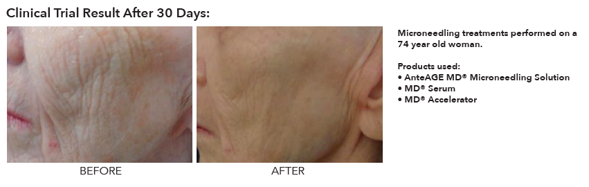 Before and after AnteAge microneedling and at-home products